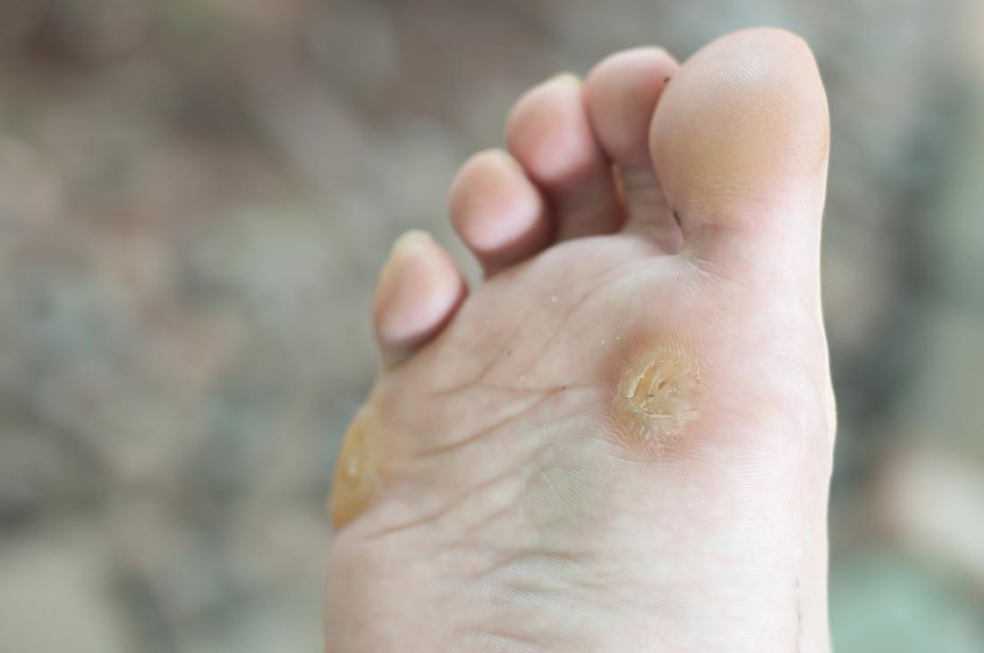 wart virus shoes helminth infection diagnosis