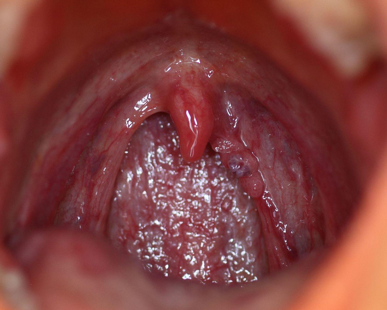 cancer du colon papillomavirus laryngeal papillomas virus