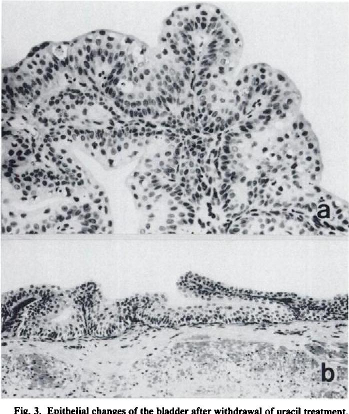 Omisiune a organelor și a venelor varicoase