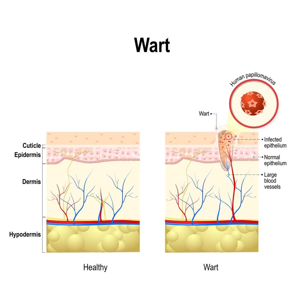 hpv jab genital warts