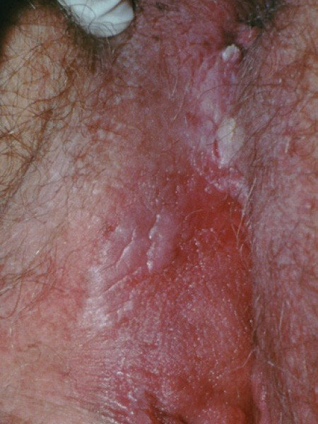 hpv warts while pregnant