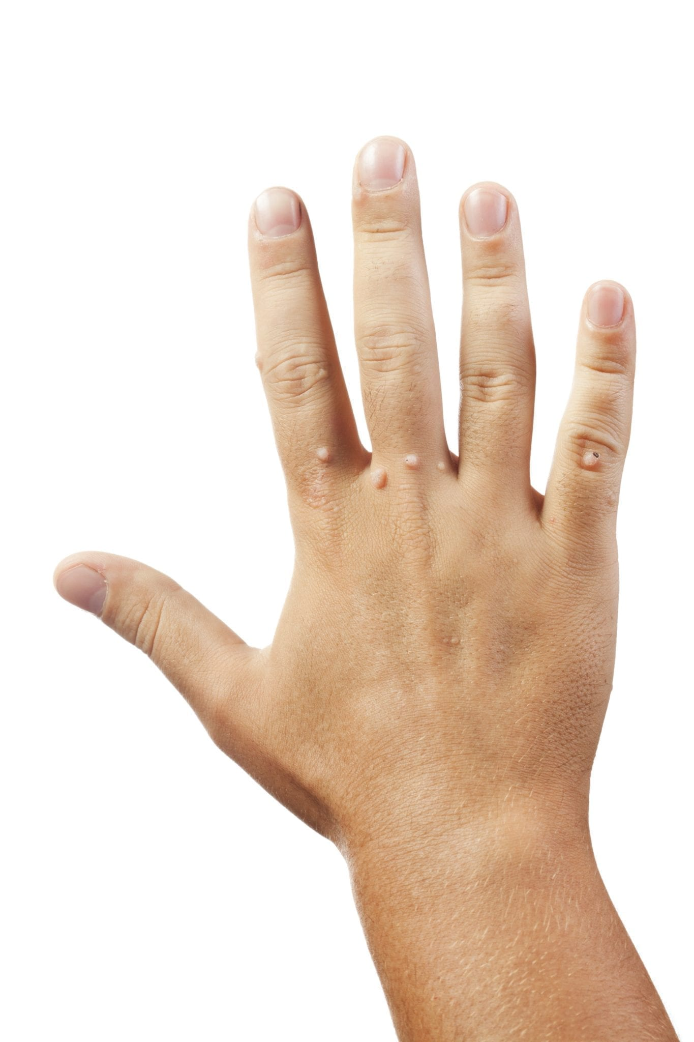 warts on hands best treatment