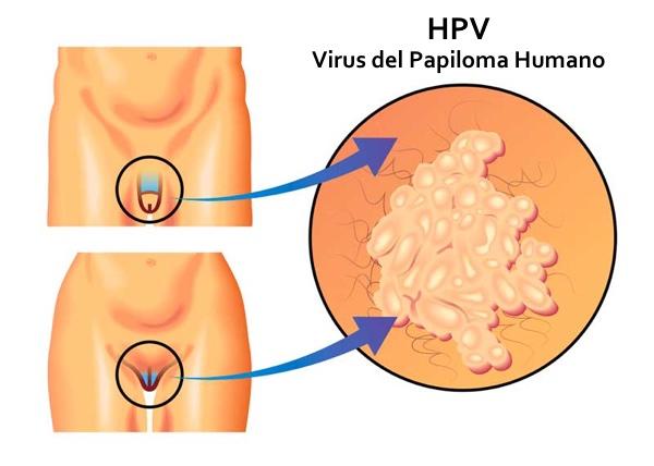 cancer de prostata hereditariedade pastile oxiuri copii