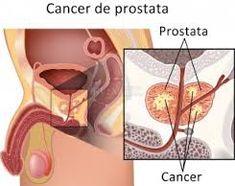 cancer de prostata metastaze ovarian cancer etiology