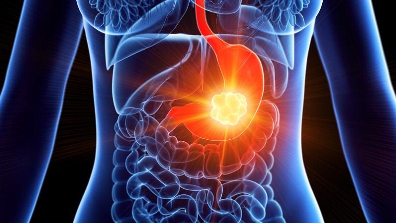 papillary thyroid cancer labs