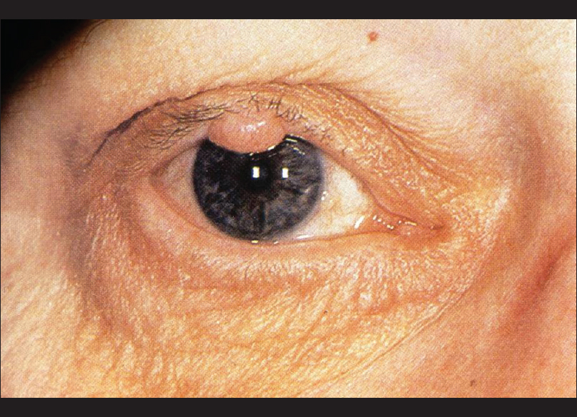 papilloma on eyelid pictures