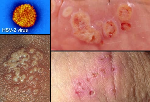 hpv vs herpes symptoms hpv finger wart