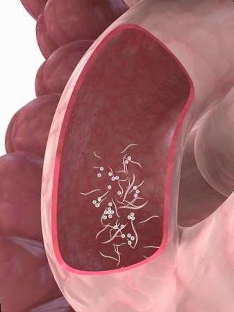 oxiuros sintomas en mujeres tratamiento natural mancare pentru detoxifiere