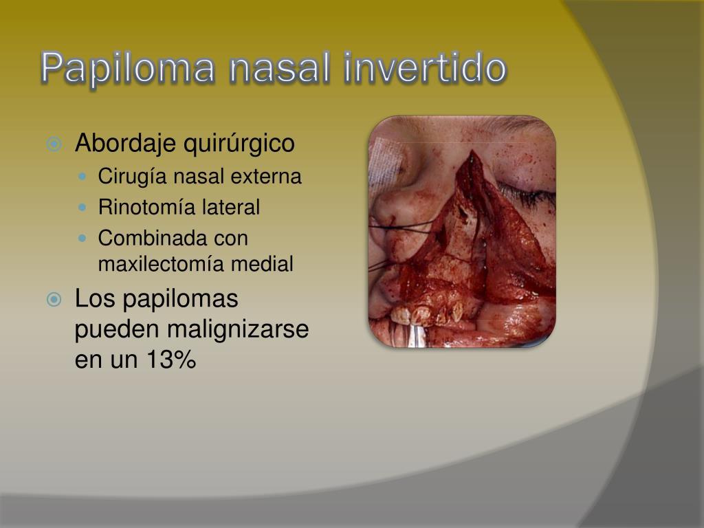 medicamentos para los oxiuros en ninos papiloma en hombres como se contagia