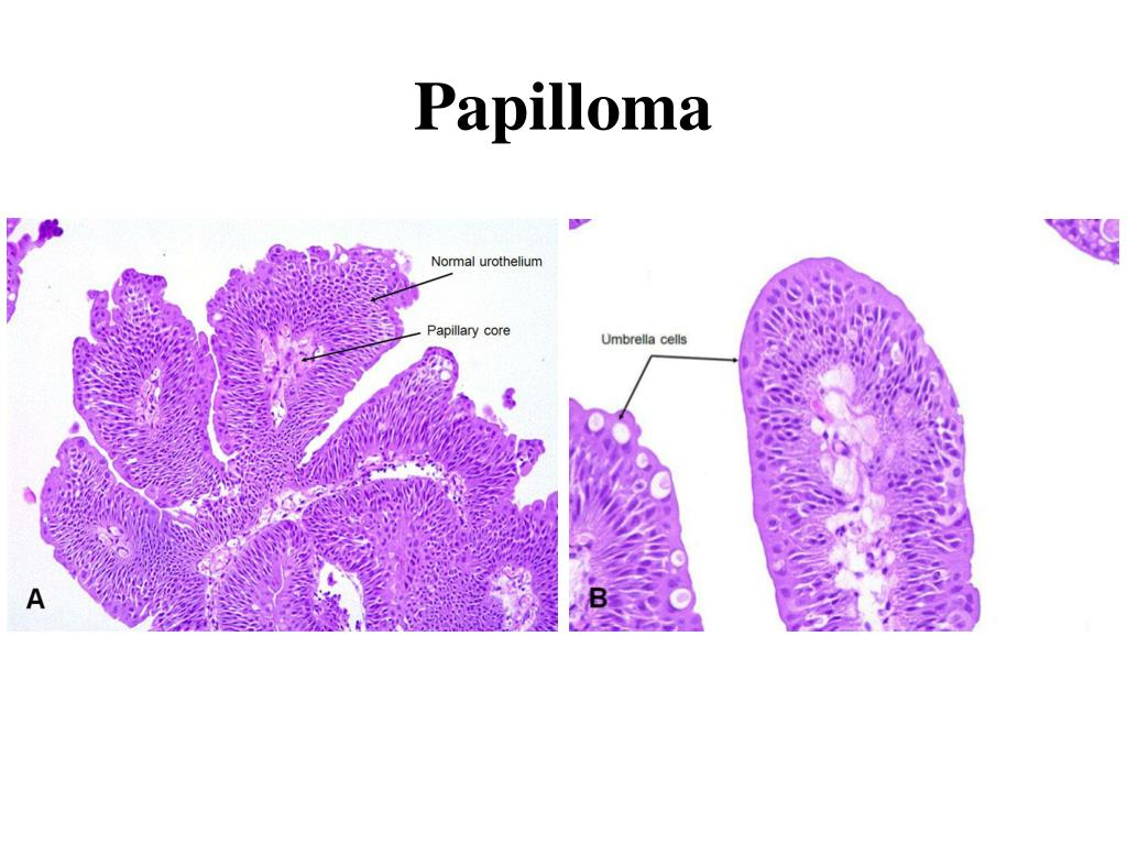 human papillomavirus infection report sessile papilloma eyelid