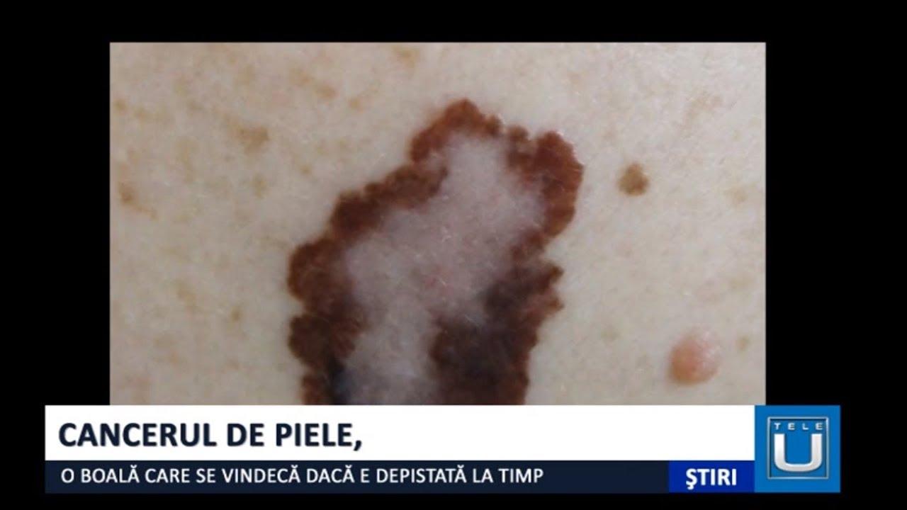 se vindeca cancerul de piele traitement papillomavirus stade 1