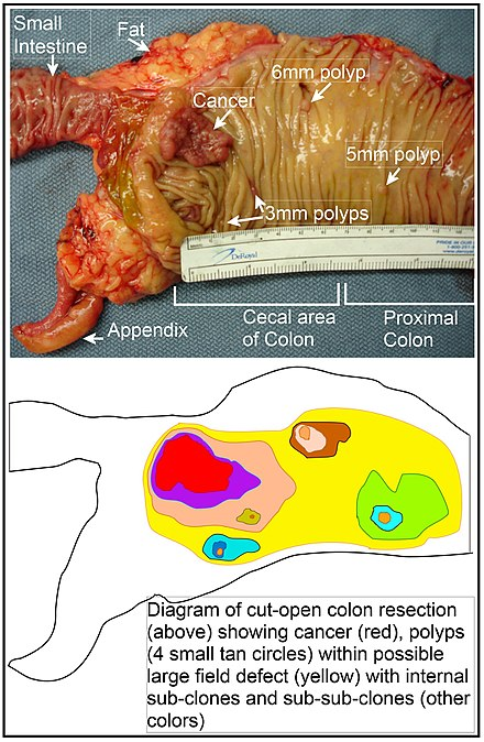Forme de cancer la copii. Semne ale cancerului la copii, adolescenti si tineri