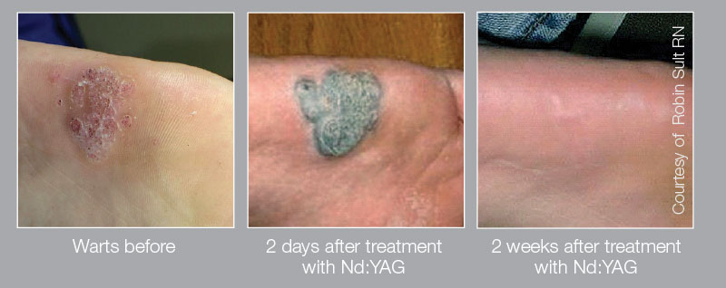 wart treatment laser