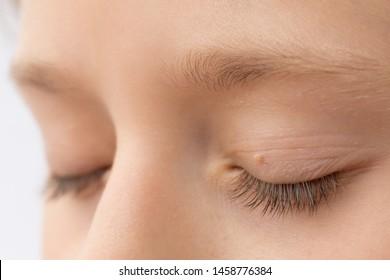 hpv inside eyelid