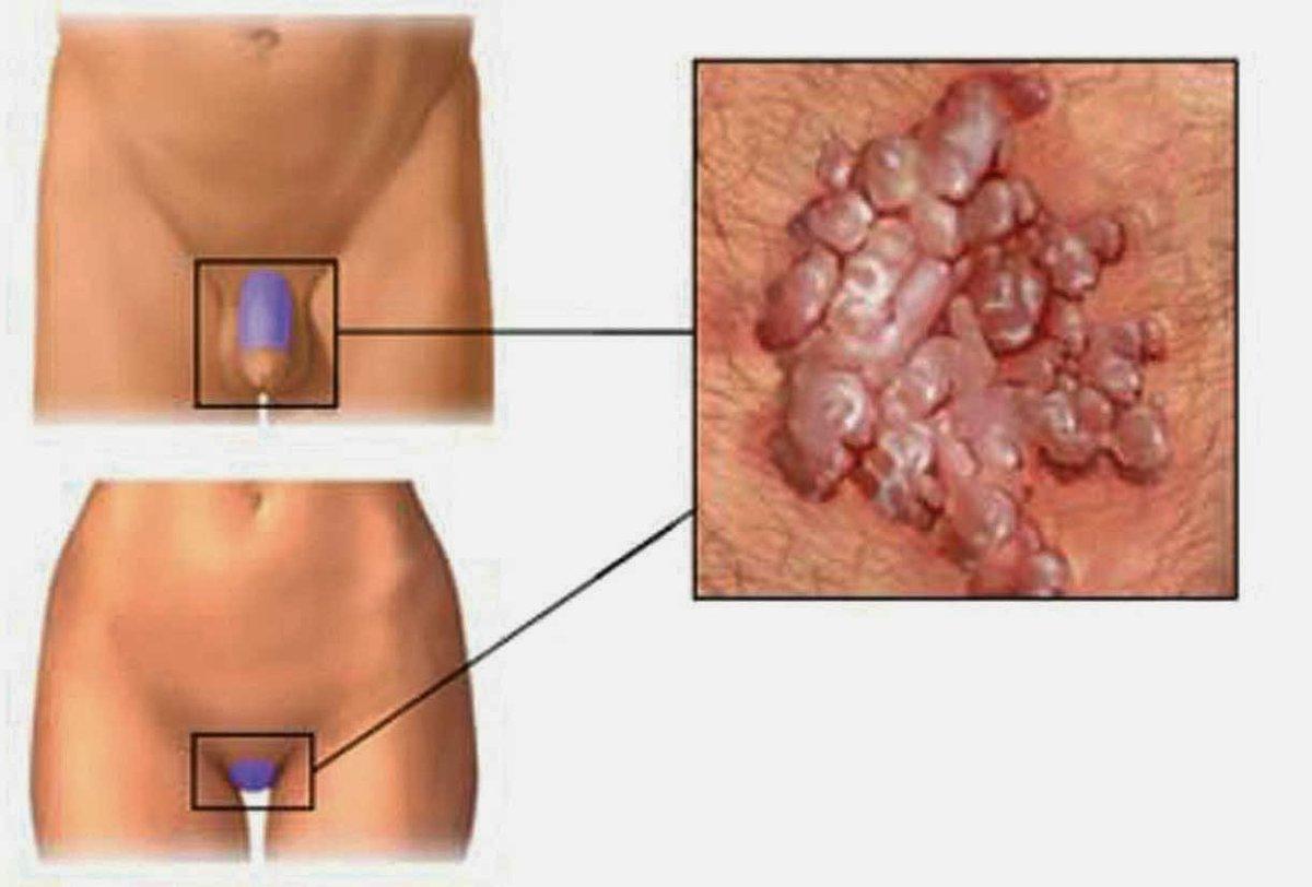 papilloma virus italiano