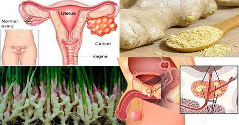 cancer prostata y colon