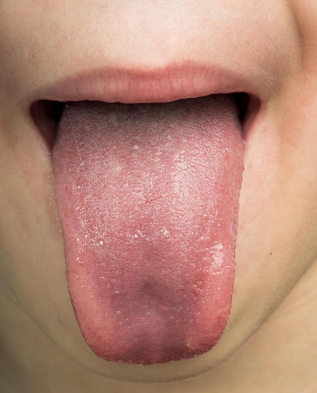 genital warts on tongue treatment