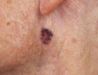 Understanding Skin Chart 22x28 in | Skin anatomy, Skin care, Acne skin