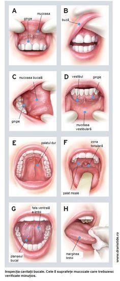 cancerul bucal simptome