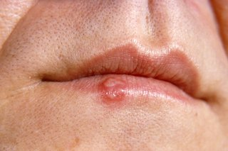 hpv causes cold sores
