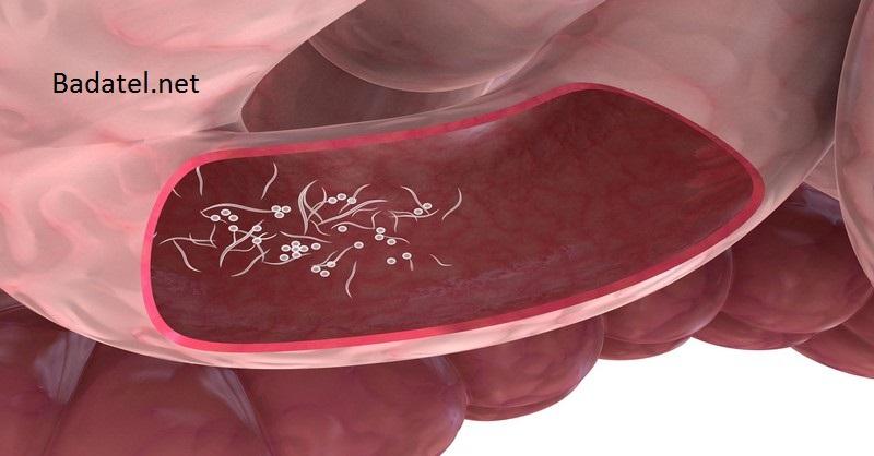 Cum previi infectarea cu paraziţi intestinali de la animale la oameni?