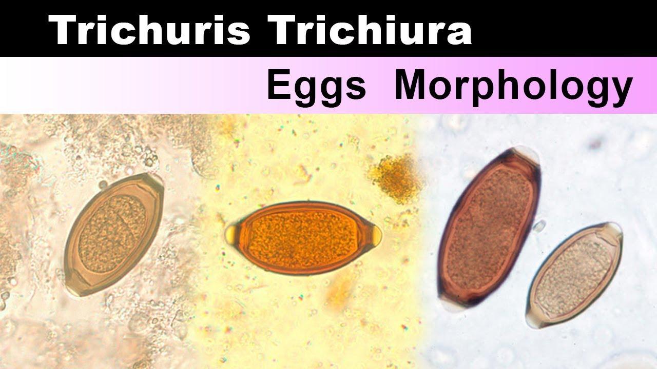 enterobius vermicularis pronunciation human papilloma virus vaccine meta-analysis