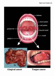 papiloma humano y tabaco