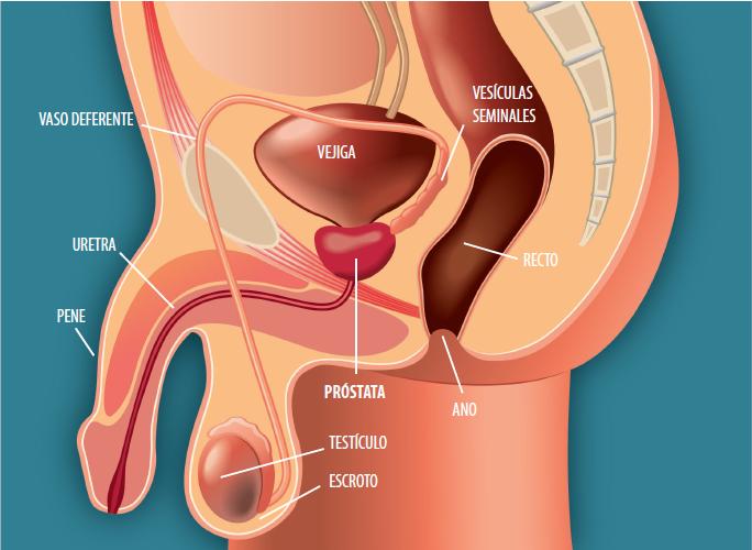 cancerul peritoneal