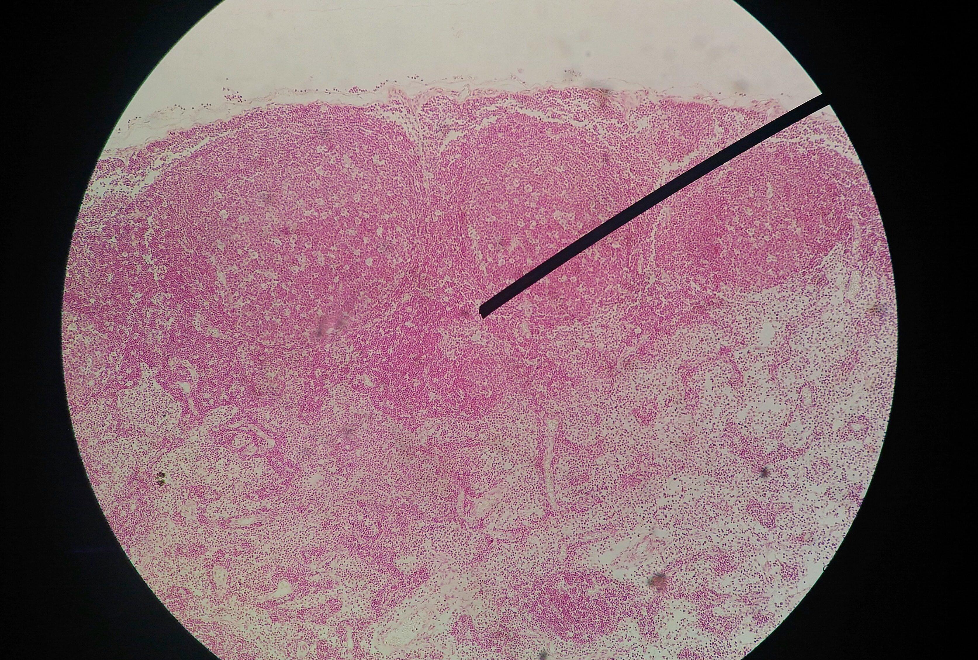 papilloma virus uomo visita