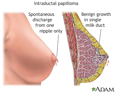 should a papilloma be removed