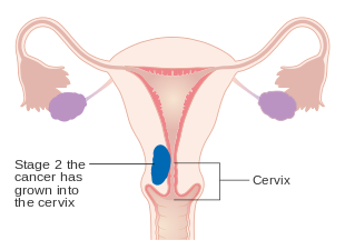 cancerul endometrial