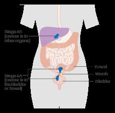 papillomavirus zwangerschap ossiuri adulti rimedi naturali