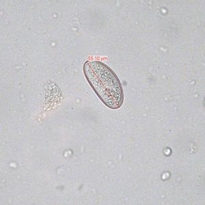 enterobius vermicularis estadios is human papillomavirus genetic