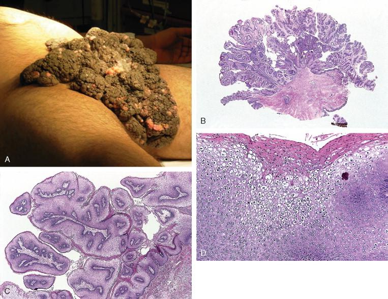 condyloma acuminata cancer
