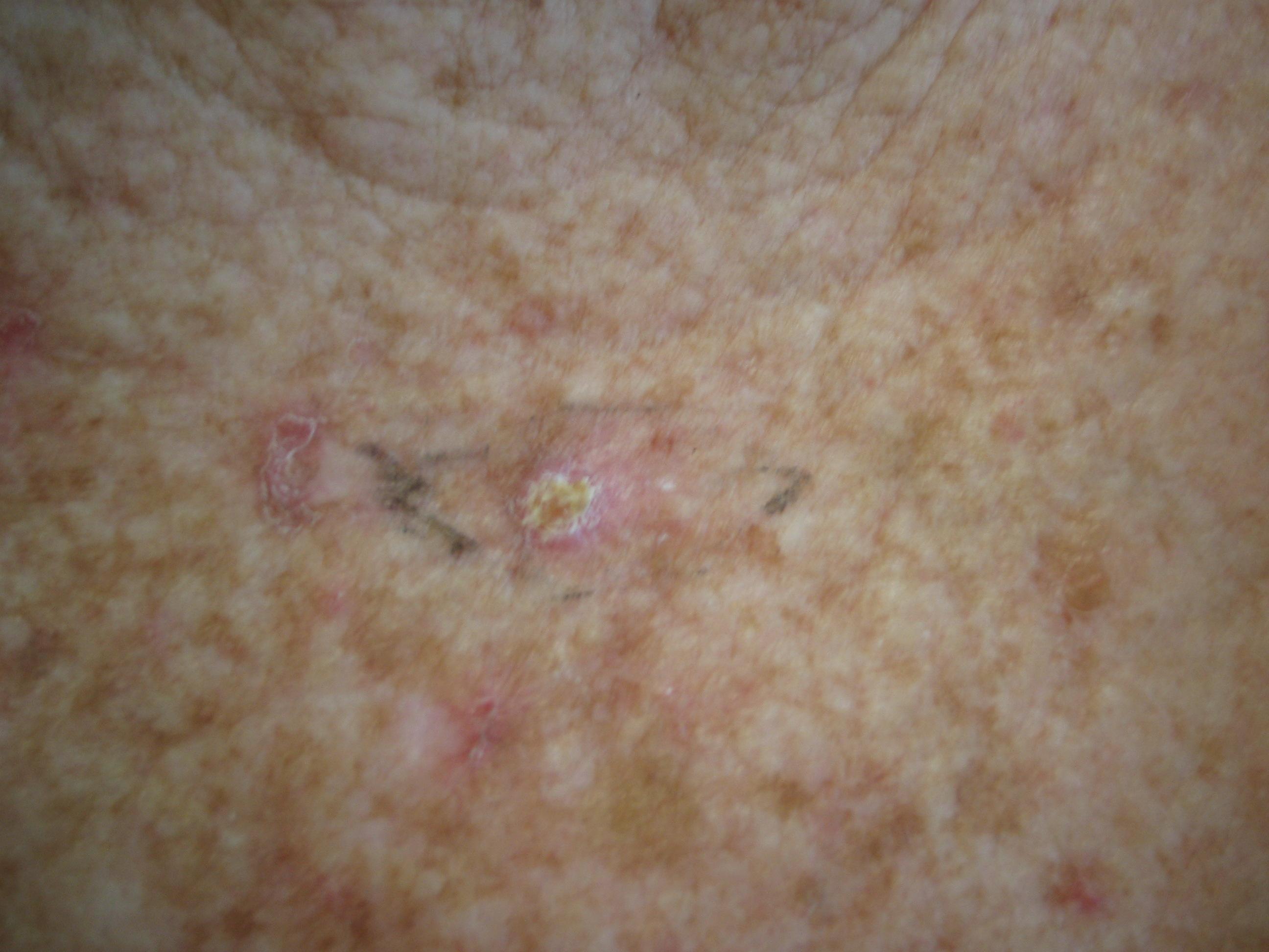 hpv scc skin papiloma en tiroides