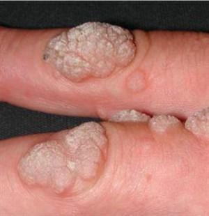 human papilloma nedir precancerous cells from hpv