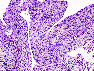 papilloma urothelial pathology