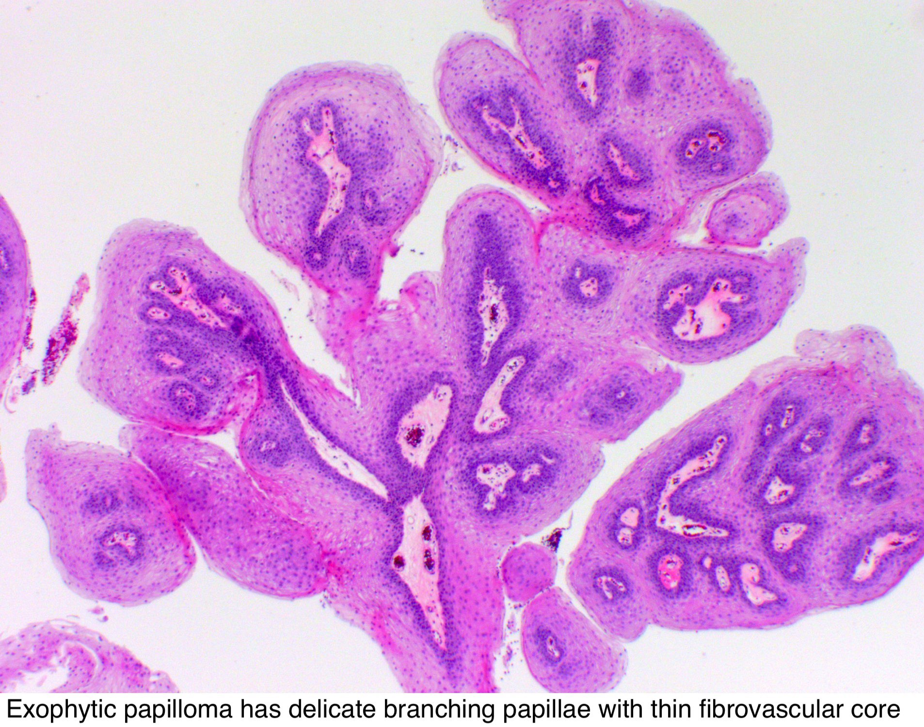 papilloma tonsil pathology