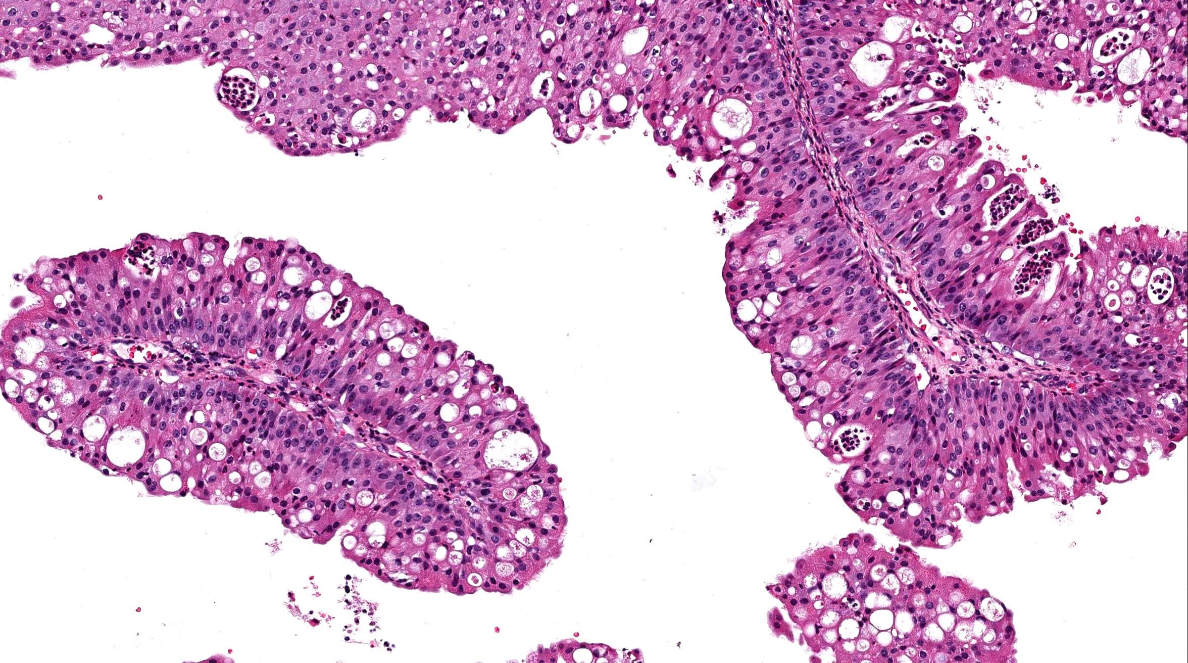 papilloma urothelial pathology