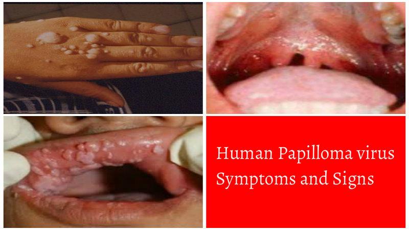 cancer buza simptome que es cancer linfatico sintomas