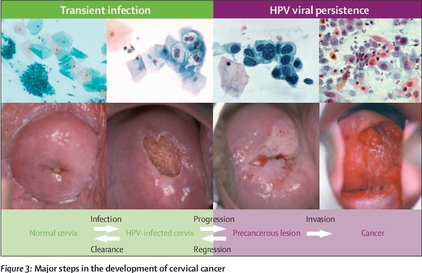 cancerul penian simptome papillon zeugma zimmer