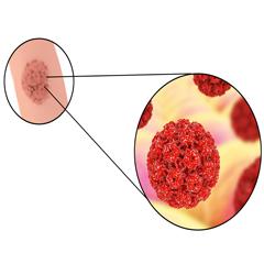 urothelial papilloma symptoms