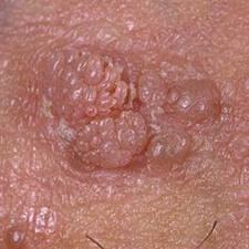 cancer de prostata inca 2019 condyloma acuminata icd