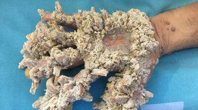 parazitii londra peritoneal cancer trials