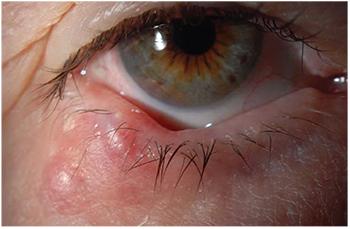 eyelid papilloma removal surgery