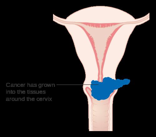hpv cancer ovarian