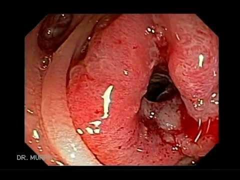colorectal cancer colonoscopy tratament oxiuri copii sub 1 an