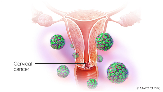 hpv and precancerous cells