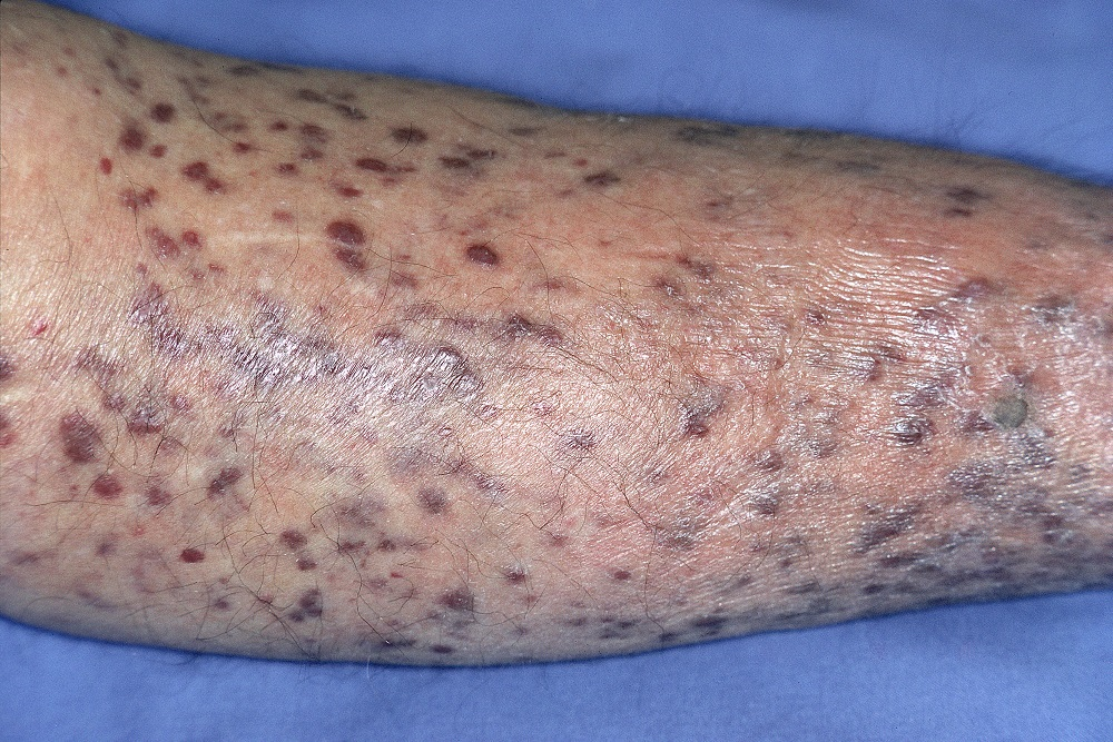 cancer kaposi sarcoma