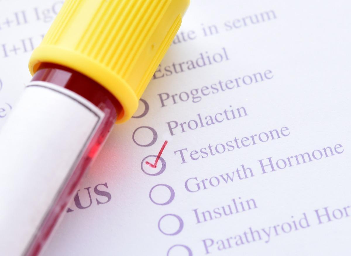 cancer hormonal recidive